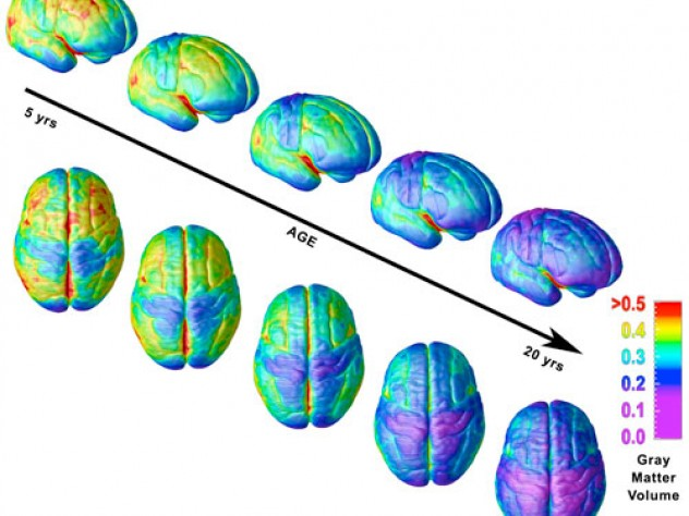 How Does Media Use Influence Brain Development In Adolescence?