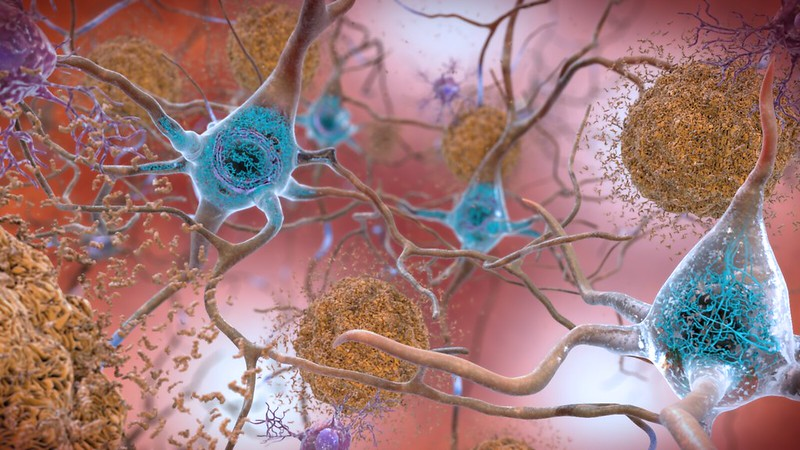 Amyloid Beta in Alzheimer's Disease