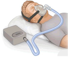 Snorts and Slumber: An Overview of Continuous Positive Airway Pressure