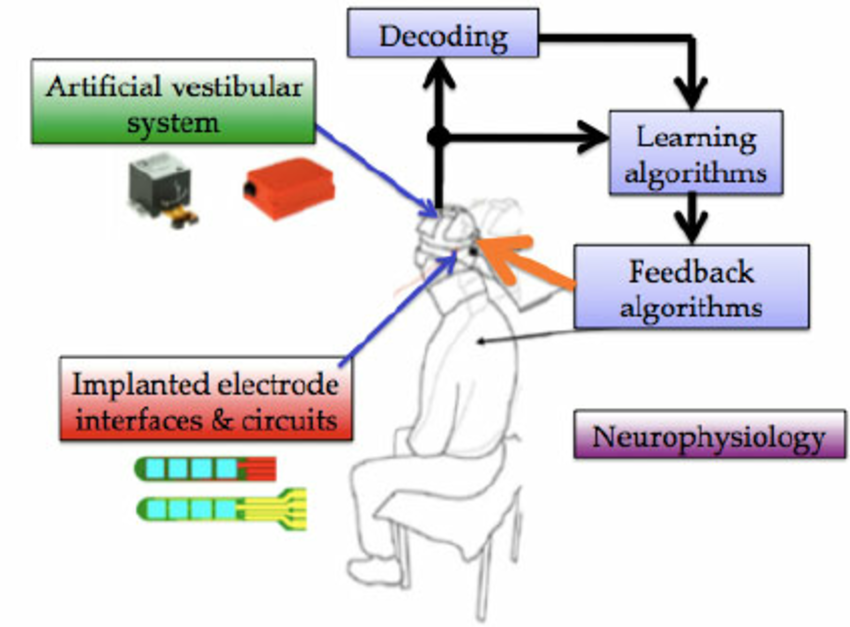 Tottering and Technology: An Overview of Vestibular Prosthetics