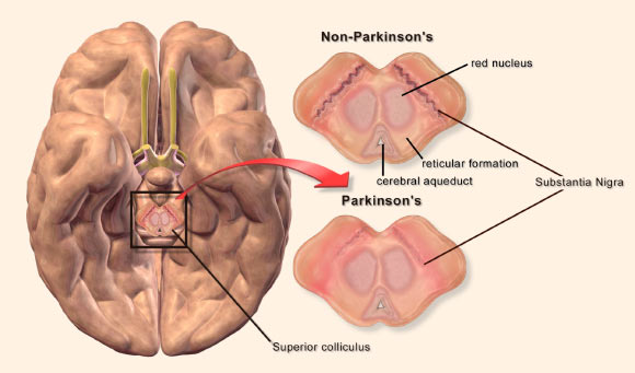 A Personalized Approach to Parkinson's Disease