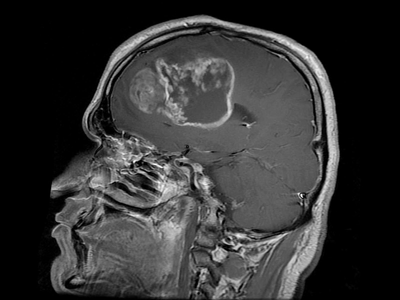 Glioblastoma Brain Tumors